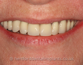 Dental Implants in Hertford